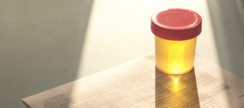 A urine sample is shown on top of a blank drug testing form.